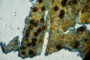 Mychosphaerella 3