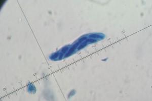 Mychosphaerella 4